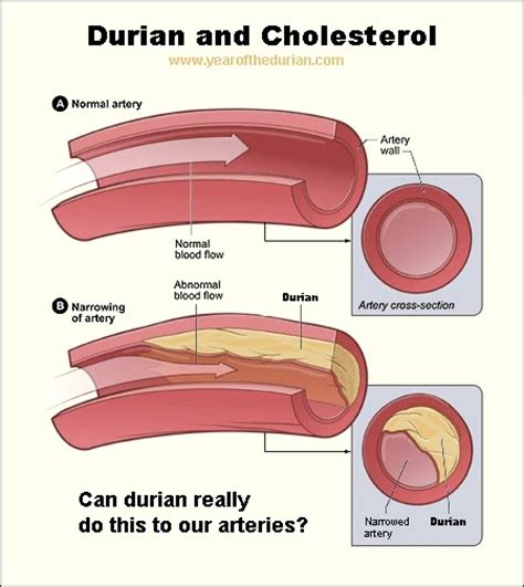 durian  cholesterol