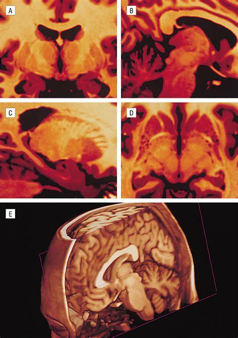 best neurology journals imaging neurology jama neurology the jama network