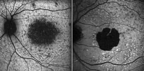 pattern dystrophy vs macular degeneration f1 an update on the genetics of age related macular