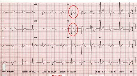 rsr pattern ecg meaning brugada syndrome health tutor