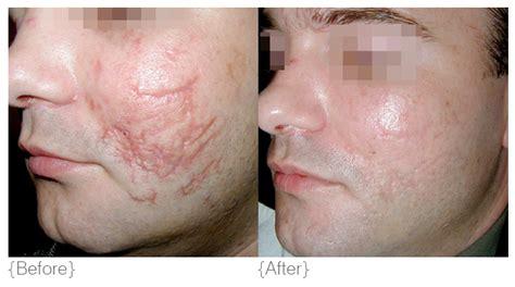 Acne Serum Zahra Skincare Pink revising skin conditions