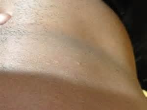 tanning bed rash photos