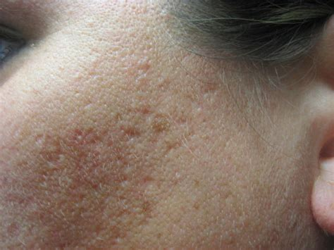 acne scars on face treatment question about deep acne scarring peels and