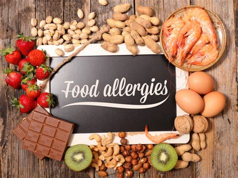 cuisine you etes food allergies symptoms treatments and causes