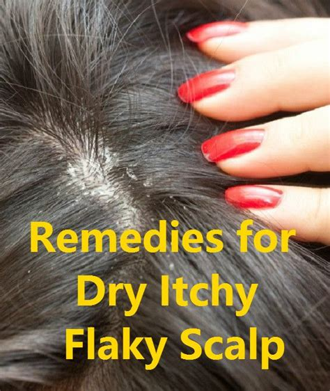 Why Do Itch So Bad After A Shower by 25 Trending Itchy Flaky Scalp Ideas On