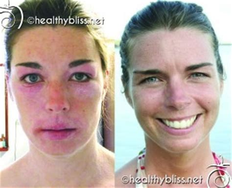Vegan Detox Caused Bloutchy Itchy Skin by Before And After Pictures Food Diet Detox Reboot