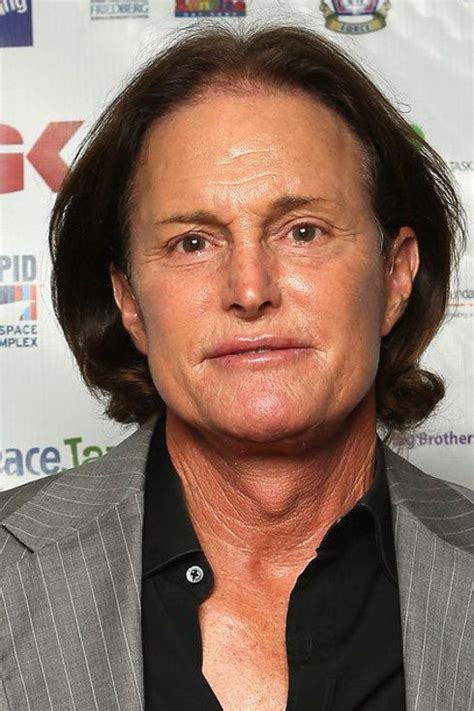 whats happened to bruce jenner the 27 most extreme celebrity plastic surgeries of all