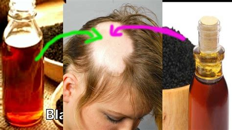 kalonji oil for hair growth how to use kalonji black seed oil for hair growth and