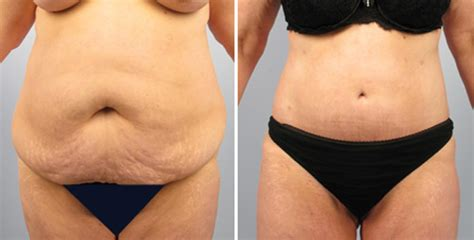 how to lose post pregnancy belly after c section combi tuck a specialty at germantown aesthetics