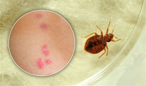 bed bug bites signs  symptoms  insect bites