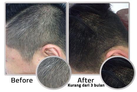 Dermagift Hair Serum Harga dermagift redensyl hair serum distributor resmi