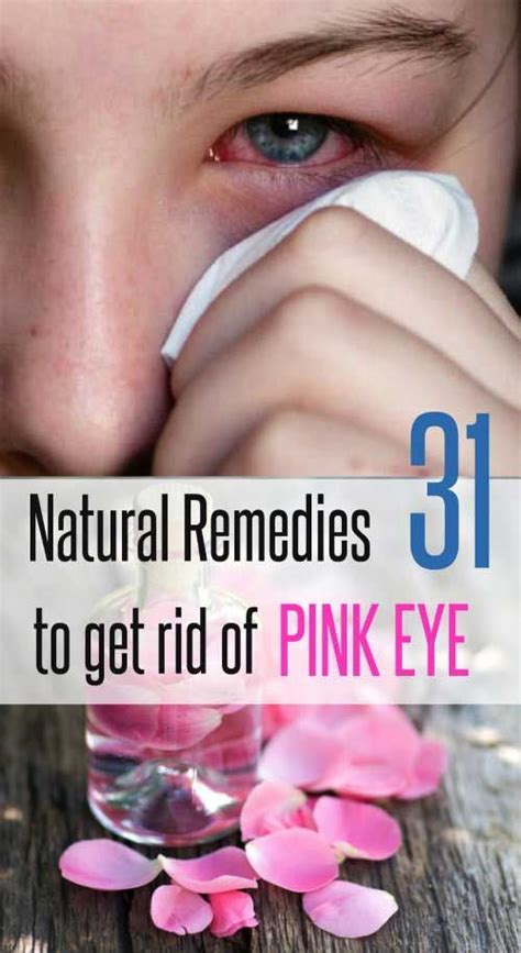 78 best ideas about pink eye treatment on pink