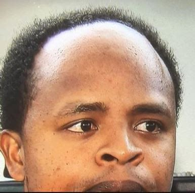 receeding hairline afro receding hairline in men black men causes bun