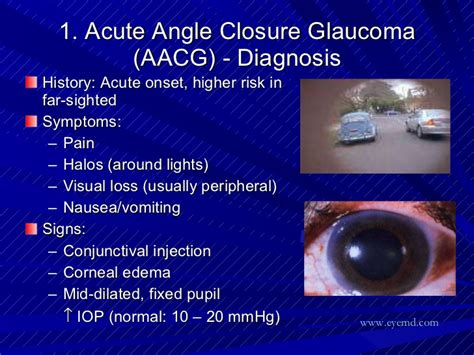 seeing halos around lights in one eye halos around lights glaucoma decoratingspecial com