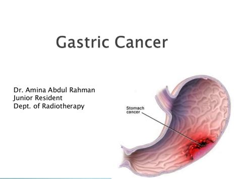 stomach tumor gastric cancer