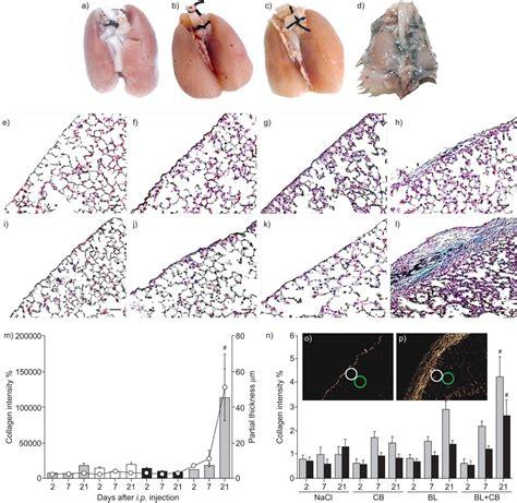 Bleomycin Lung Fibrosis Model