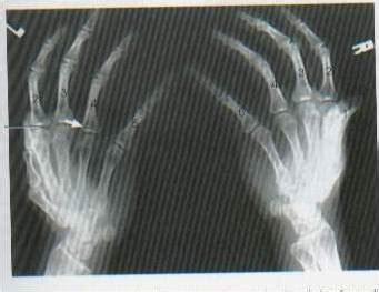 radiology squad teknik pemeriksaan radiografi ossa manus