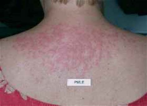 polymorphous light eruption lupus differential diagnosis of papulosquamous scle lupus