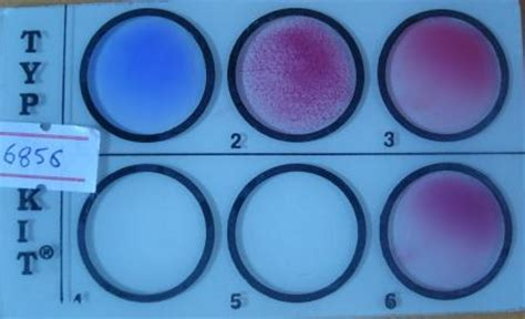 widal wright test antigen antibody reactions agglutination and types