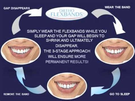 fix teeth gap permanently without braces teeth gap