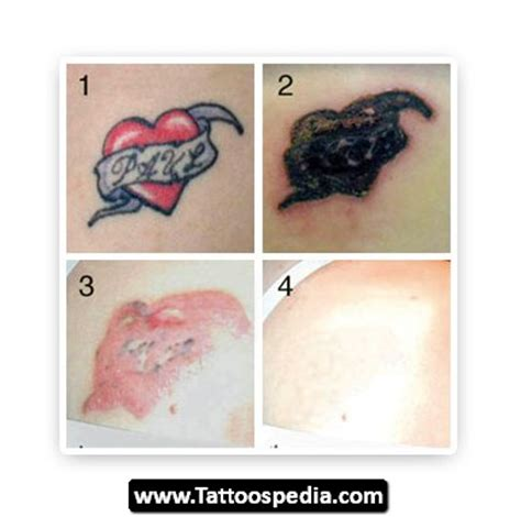tattoo removal does it work how does tattoo removal work 10