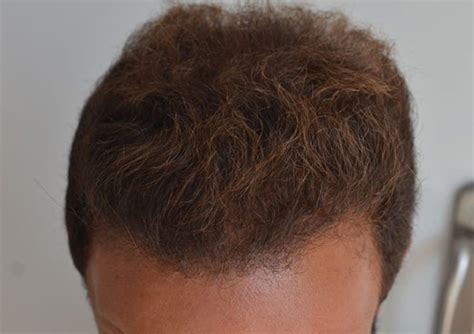 male pattern hair loss emedicine male pattern hair loss l androgenic alopecia l london