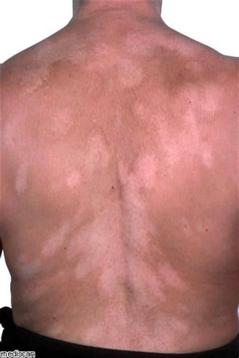 en la piel de 8499925197 191 qu 233 es el vit 237 ligo manchas blancas en la piel blogmedicina