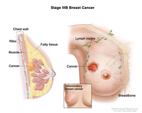 breast section breast cancer treatment stages of breast cancer my