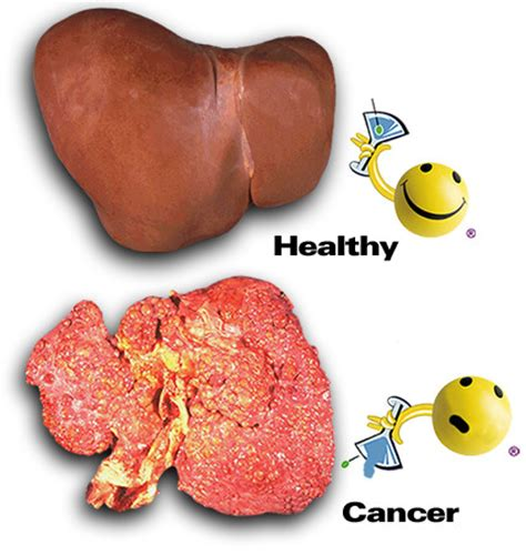 Liver Detox For Cancer Patients by Aloe Vera Herbalife Side Effects Herbalife Liver Cancer
