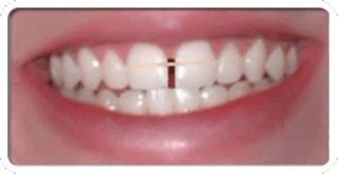 teeth gap bands gapped teeth