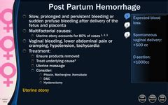 haematoma post c section obstetrics labor and delivery complication flashcards