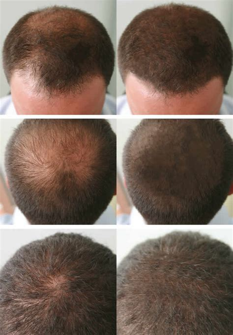 lllt hair loss pictures