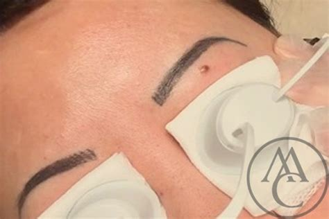 removing a fresh tattoo carr cosmetic tattooing eyebrows eyeliner