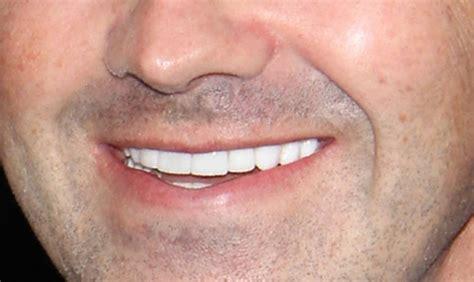 oral health care dental checkups sharoe green dental