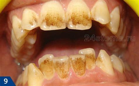 Черный зубной налёт причины удаление дома и у стоматолога