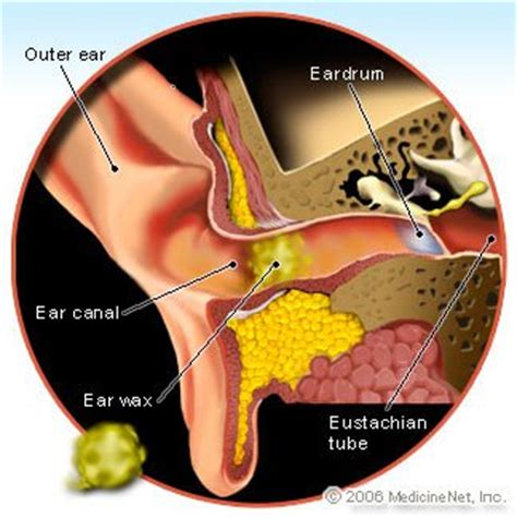 Hair Dryer Ear Wax how to remove ear wax removal kit home remedies