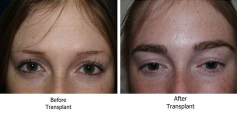 viviscal eyebrow before and after heavy duty beauty eyebrow transplant procedure ageistbeauty