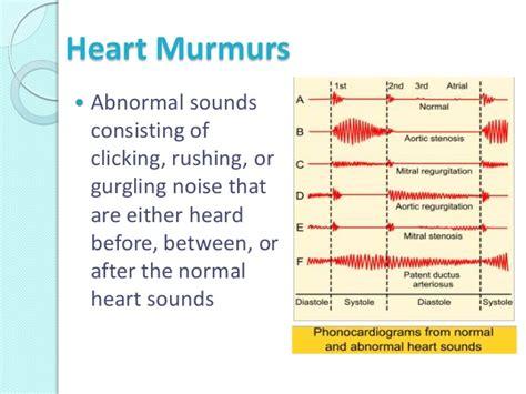 S4 Gaza Murmer 1 sound analysis