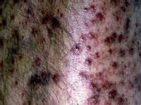 fibrous papule of the nose dermnet nz scurvy skin www pixshark com images galleries with a bite