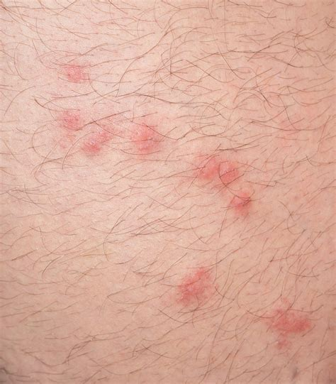 picture of bed bug bites on humans medical misfortunes when to see a doctor after a bug bite