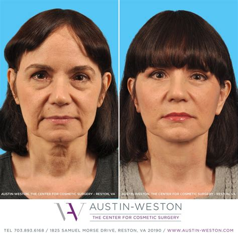 celebrities who have had a neck lift 58 year old patient had a face lift neck lift upper and