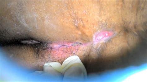 pilonidal cyst pilonidal sinus hair removal om hair