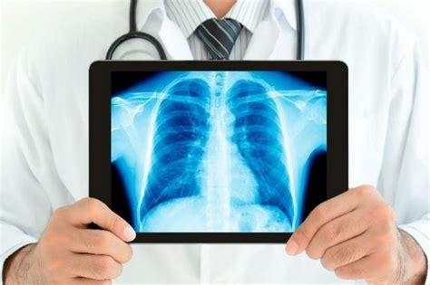 imagenes de negligencias medicas la radiolog 237 a y su rol en las emergencias m 233 dicas