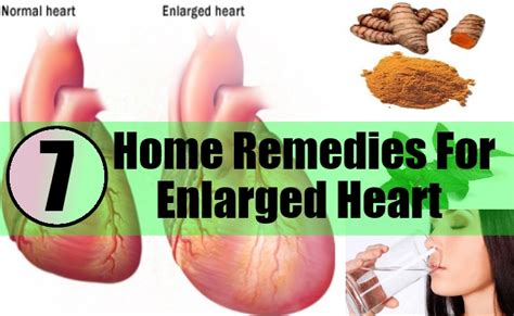 7 home remedies for enlarged treatments