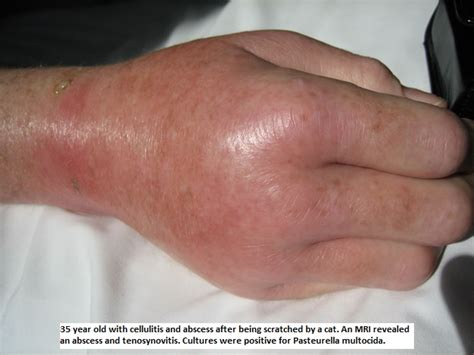 cellulitis after c section image gallery strep cellulitis