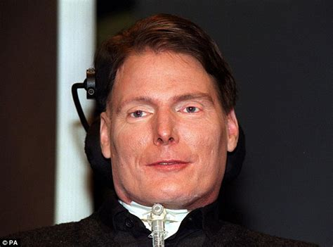 christopher reeve doctor sergio canavero confident he can perform head transplant