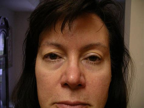 Mcgowans Droopy Eye Problem by Botox Injections Problems And How To Avoid Them Adam