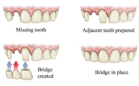 dental bridge twinkle family dentalcare