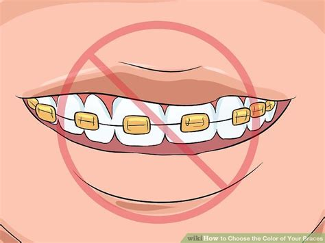 choose color how to choose the color of your braces 14 steps with