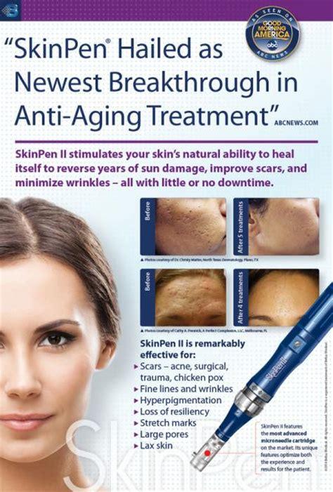 skin  microneedling treatment dallas tx facial